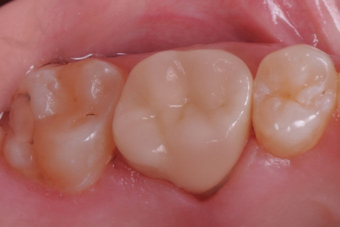 Мал. 14. Підсумок виконаної роботи. Керамічна реставрація зуба 1.6