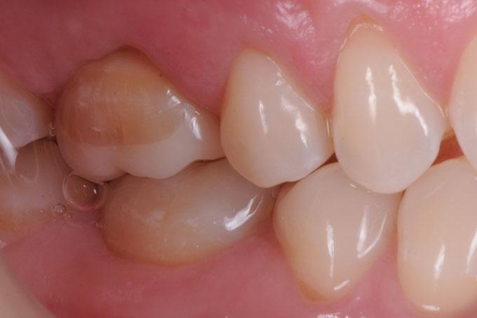 Мал. 15. Підсумок виконаної роботи. Керамічна реставрація зуба 1.6