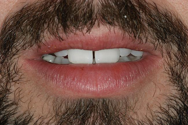 Вигляд зубів пацієнта в стані спокою: ознаки надмірної візуалізації різців