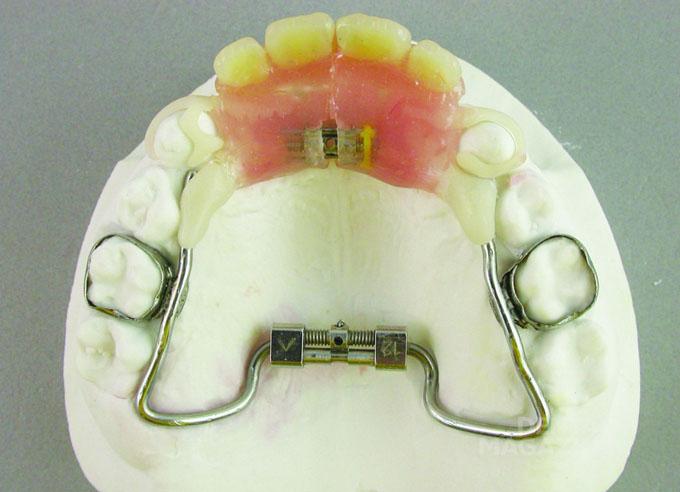 Мал. 5. Модульний ортодонтично-ортопедичний апарат для верхньої щелепи на гіпсовій моделі