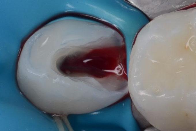 Мал. 3. При розкритті пульпової камери спостерігається відсутність спонтанного гемостазу, це є ознакою безповоротного запалення і свідченням до проведення вітальної екстирпації.