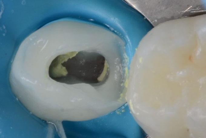 Мал. 4. Кореневі канали розширені, проведена медикаментозна обробка і пломбування кореневих каналів пастою на основі гідроксиду кальцію.